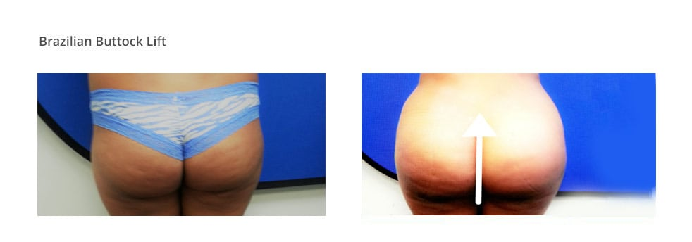 Image of before and after Brazilian Butt Lift Procedure